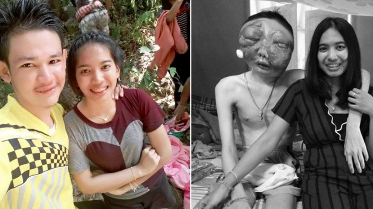 男友罹眼癌…雙眼爆出臉毀容 她不離棄陪3年半病逝