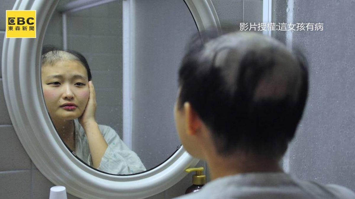 死神同行!23歲「血癌女神」樂觀抗癌 盼病友快樂做自己