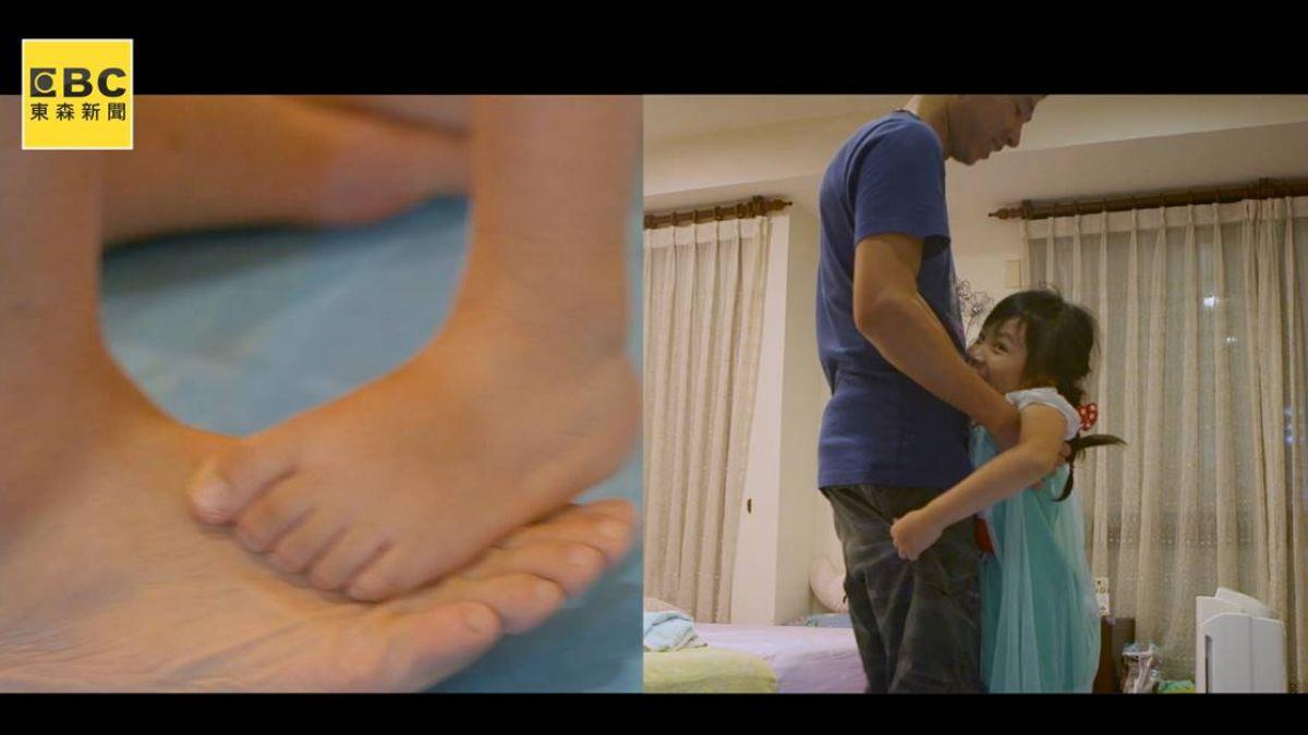 雙腳漸漸無法行走…卻想當舞蹈家!6歲罕病女孩踩父腳背享受跳舞