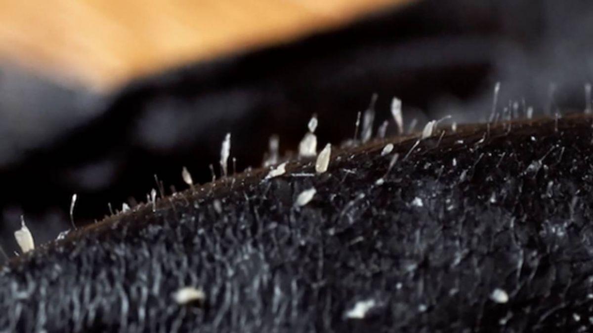 拔的不是粉刺?專家微距影像揭密妙鼻貼 網崩潰:誤會大了