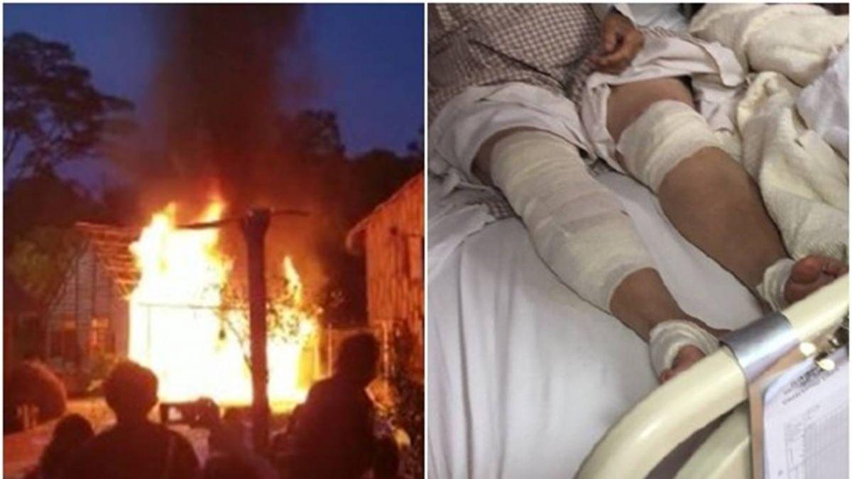 30人燒傷!油濺到演員遭「火焚身」…片場變煉獄