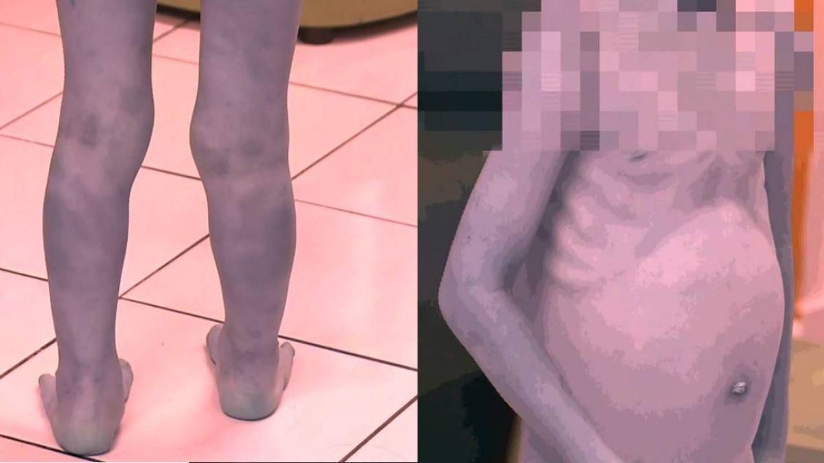 獨家直擊!遭虐三歲男童皮包骨、無法久站