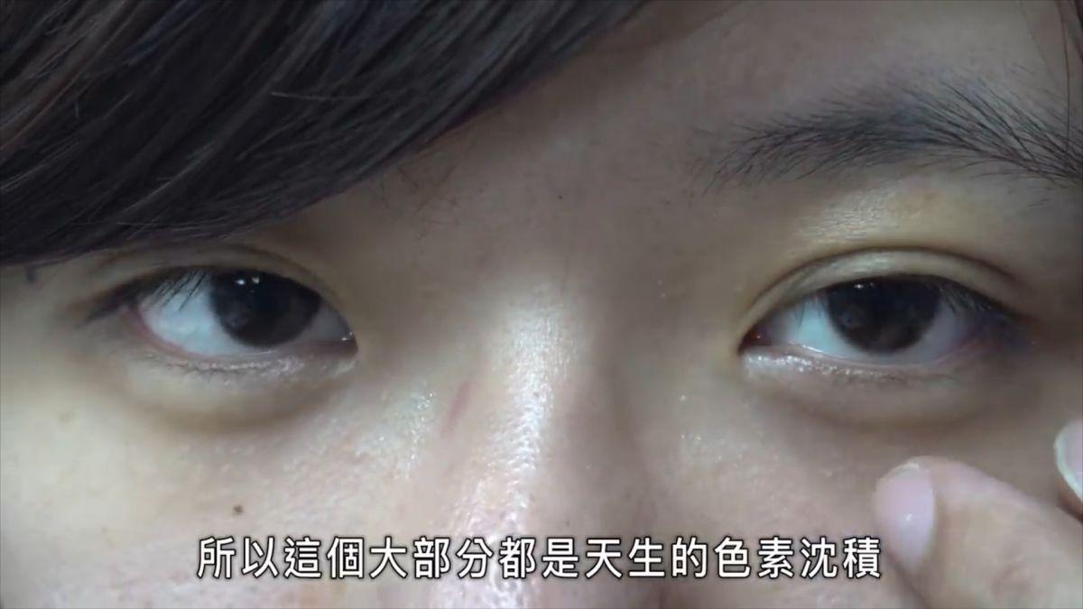 真的沒熬夜!熊貓眼好難消 醫師教黑眼圈種類全攻略