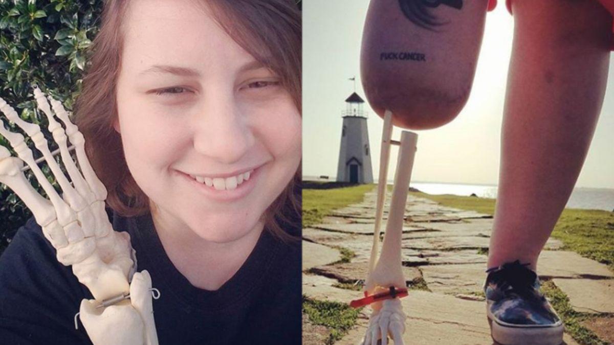 27歲截肢女求醫生留下斷腿 捧「骷髏腳」燦笑遊全美