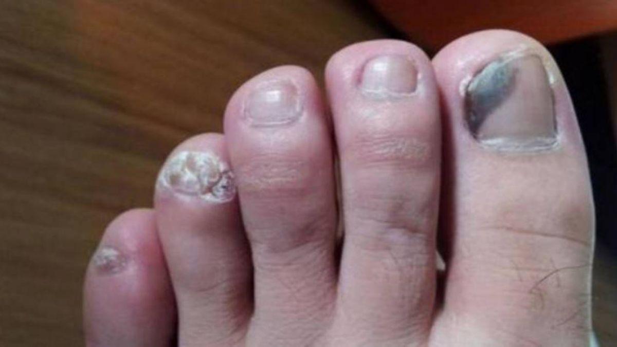 5旬婦腳趾甲全變黑!就醫驚覺癌症擴散慘截肢