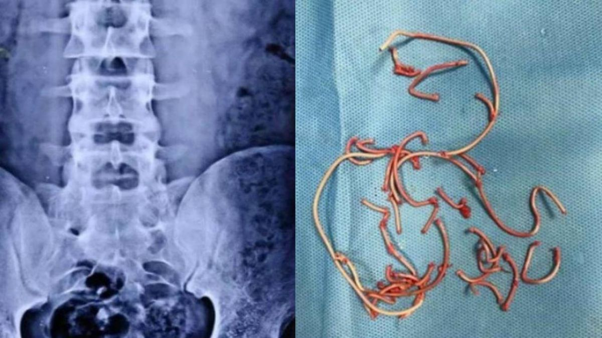 18歲男肚子痛「膀胱拉出電線」!醫追問原因超傻眼
