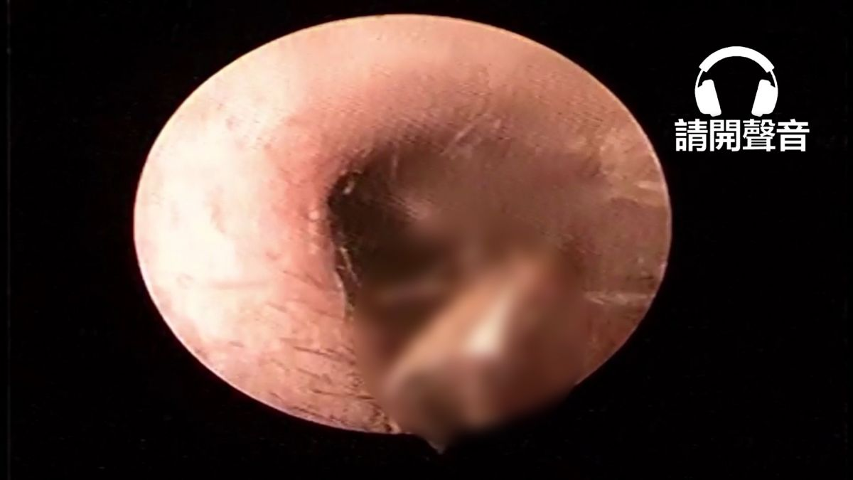 【影片】噁!男深夜耳朵奇癢無比 醫師夾出活生生大飛蛾