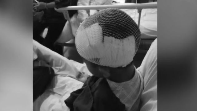 繼母拿錘子狂砸!5歲男童「頭見骨」 忍淚躺血床2小時